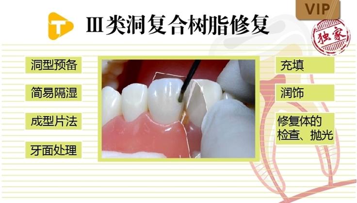 图片 Ⅲ类洞复合树脂修复