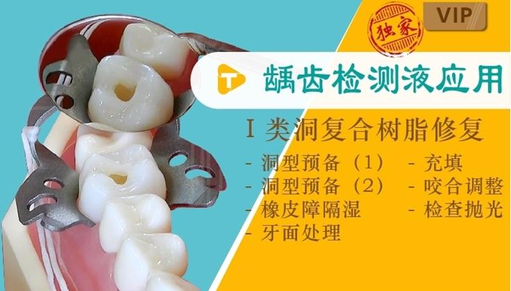 图片 龋齿检测液应用