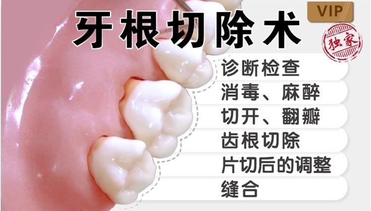 图片 牙根切除术