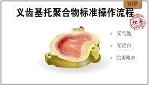图片 义齿基托聚合物标准操作流程