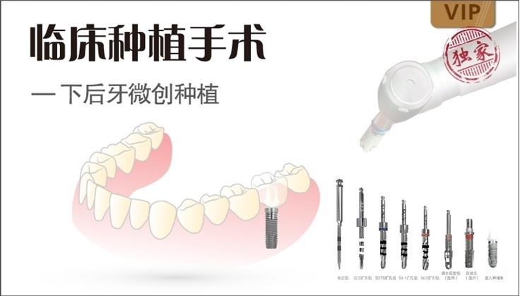 图片 临床种植手术 - 下后牙微创种植
