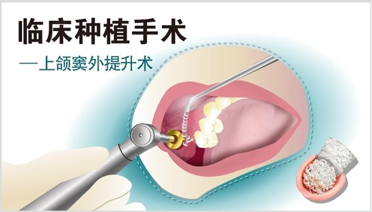 图片 上颌窦外提升术