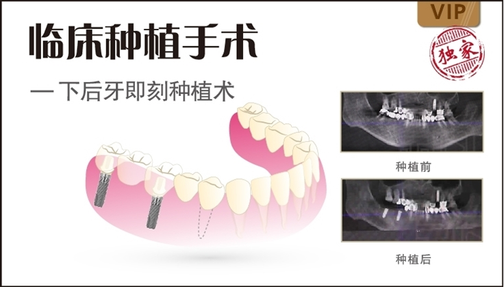 图片 下后牙即刻种植术