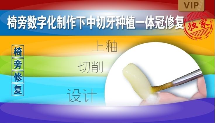 图片 椅旁数字化制作下中切牙种植一体冠修复