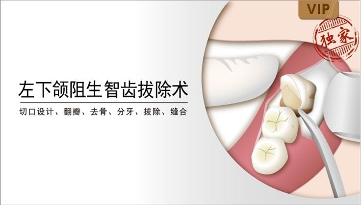 图片 左下颌阻生智齿拔除术