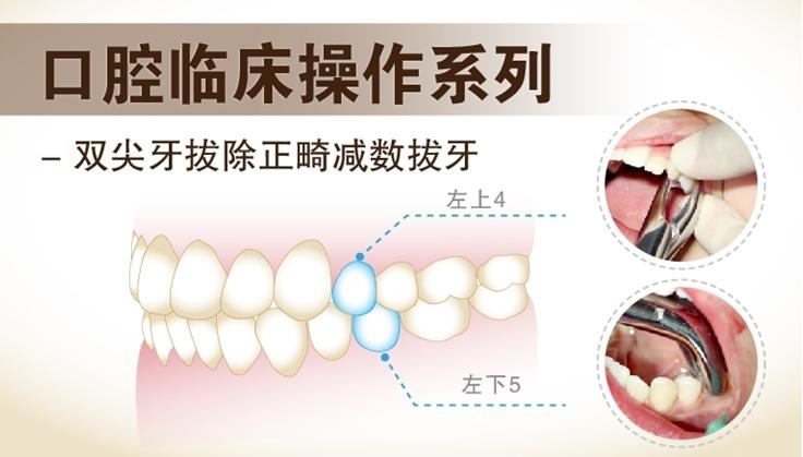 图片 双尖牙拔除—正畸减数拔牙