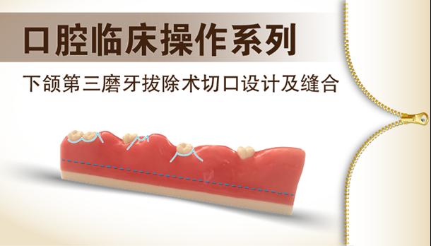图片 下颌第三磨牙拔除术切口设计及缝合