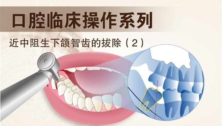 图片 近中阻生下颌智齿拔除 (2)
