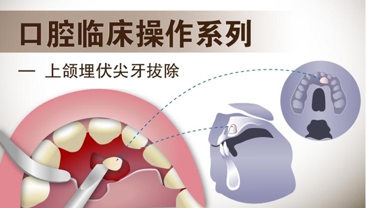 图片 上颌埋伏尖牙拔除术