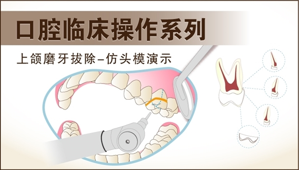 图片 上颌磨牙拔除-模型演示