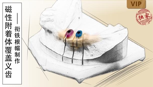 图片 磁性附着体覆盖义齿-衔铁根帽制作