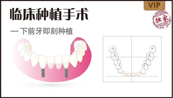 图片 下前牙即刻种植