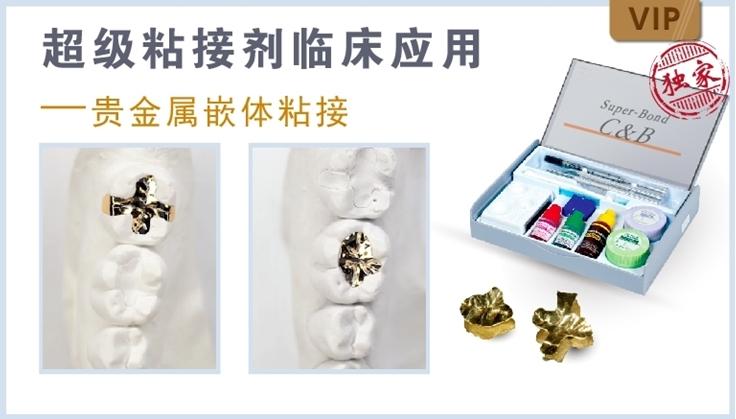 图片 超级粘接剂临床应用-贵金属嵌体粘接
