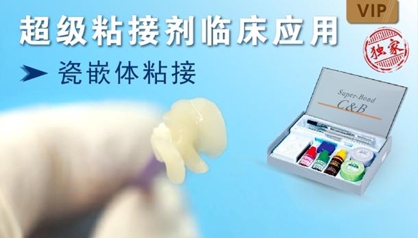 图片 超级粘接剂临床应用-瓷嵌体粘接