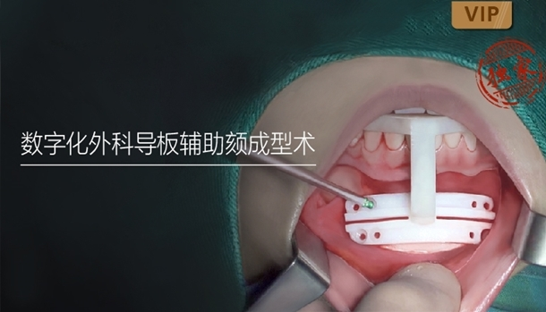 图片 数字化外科导板辅助颏成型术